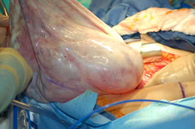 ovarian cyst complications