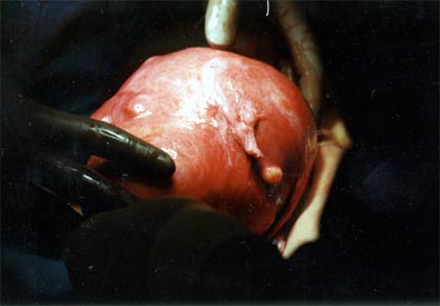Volleyball size uterus showing large fibroid and also small myomas
