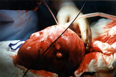 Demonstrates the removal of various sizes of fibroid tumors