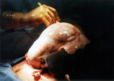 Fibroid being removed from uterus