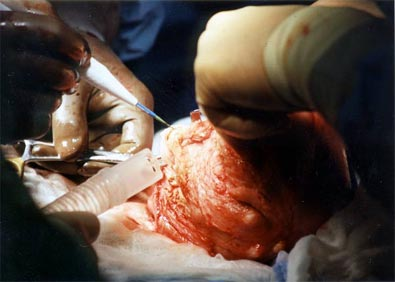 Demonstrates the removal of a fibroid tumor from within the intramural region - deep in the uterine muscle