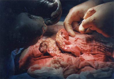 The reconstruction in progress. Note how the left and right walls of the uterus are brought back together.