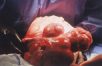 Another view again noting deformed uterus due to fibroids.